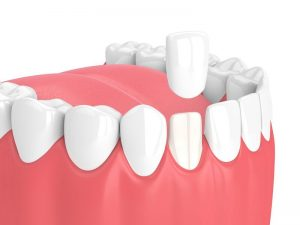 Dentist in South East London
